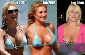 breast lift 2014 picture 7