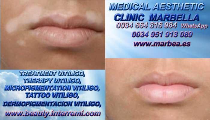VITILIGO CURA clínica estética micropigmentación entrega Vitiligo Cura