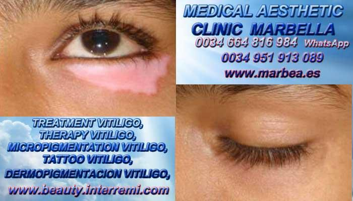 VITILIGO CURA clínica estética maquillaje permanete ofrece Vitiligo Causas