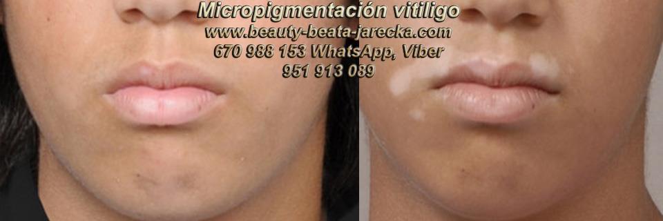 VITILIGO CURA clínica estética microblading propone Vitiligo Causas